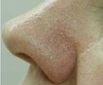 Laserové odstranění žilek - po zákroku