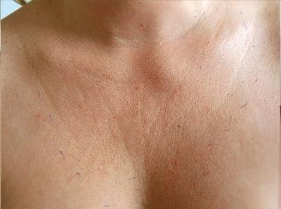 Zpevnění pokožky dekoltu mikrojehličkou radiofrekvencí - před zákrokem