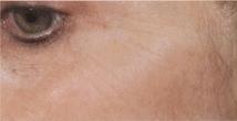 Laserové omlazení pleti kolem očí - před zákrokem