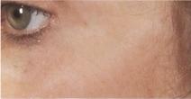 Laserové omlazení pleti kolem očí - po zákroku