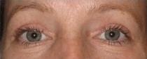 Plastická operace očních víček - po zákroku