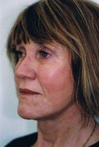 Plastická operace očních víček a minilifting - po zákroku