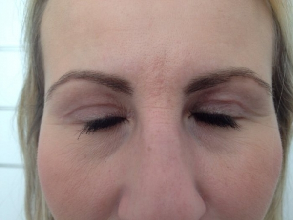 Plastická operace očních víček - před zákrokem
