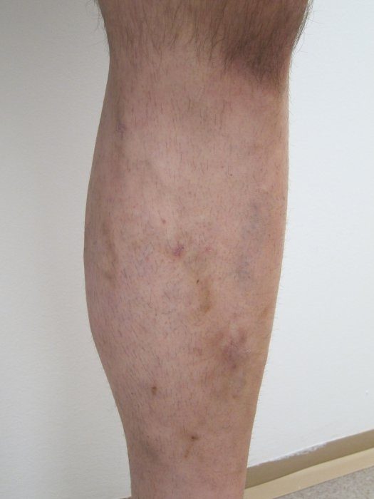 Laserová operace křečových žil - po zákroku