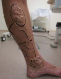 Laserová operace křečových žil - před zákrokem