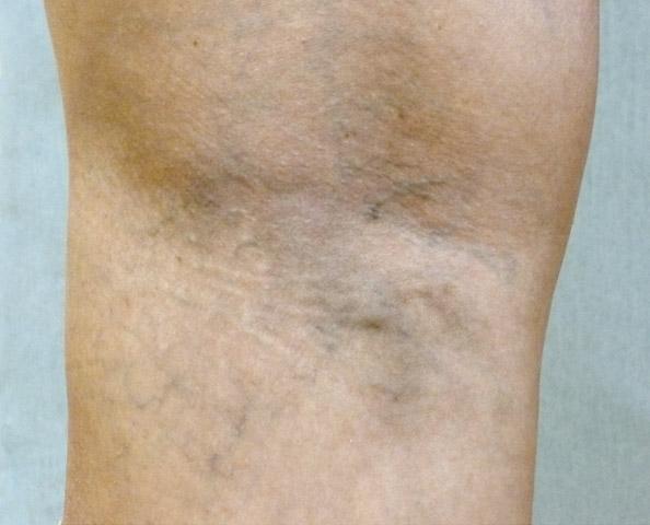 Sklerotizace křečových žil - po zákroku