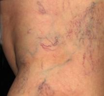 Sklerotizace křečových žil - před zákrokem