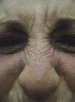 Aplikace botulotoxinu před a po zákroku