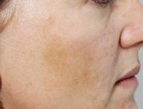 Chemický peeling – pigment před a po zákroku
