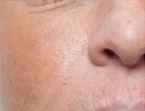 Chemický peeling – stažení pórů a pigment před a po zákroku