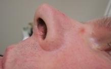Depilace laserem – chloupky v nose před a po zákroku