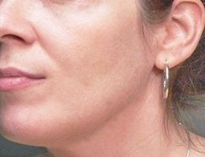 Ellanse - Tekuté nitě - koutky před a po zákroku