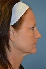Laserlift kontur obličeje před a po zákroku