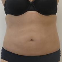 Laserová liposukce břicha - před a po zákroku
