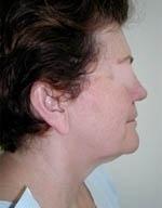 Laserová liposukce podbradku před a po zákroku
