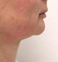 Laserová liposukce podbradku - odstranění podbradku před a po zákroku