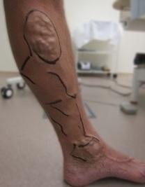 Laserová operace křečových žil před a po zákroku