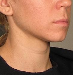 Lipolýza tuku Aqualyx před a po zákroku