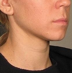 Lipolýza tuku - Aqualyx (před a po)