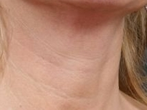 Mezoterapie krku před a po zákroku