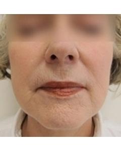 Minilifting obličeje před a po zákroku