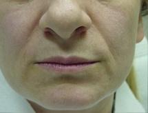 Nosoretní rýhy - Výplň kyselinou hyaluronovou před a po zákroku