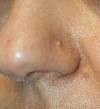Odstranění kožního výrůstku CO2 laserem před a po zákroku