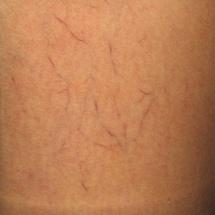 Odstranění metličkových žilek laserem před a po zákroku