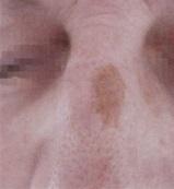 Odstranění pigmentace laserem - nos před a po zákroku