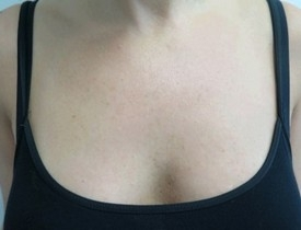 Odstranění pigmentací laserem - dekolt před zákrokem a po zákroku