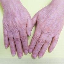 Odstranění pigmentací laserem - hřbety rukou před a po zákroku