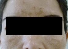 Odstranění pigmentací laserem - melazma před a po zákroku