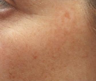 Odstranění pigmentací laserem - před a po zákroku
