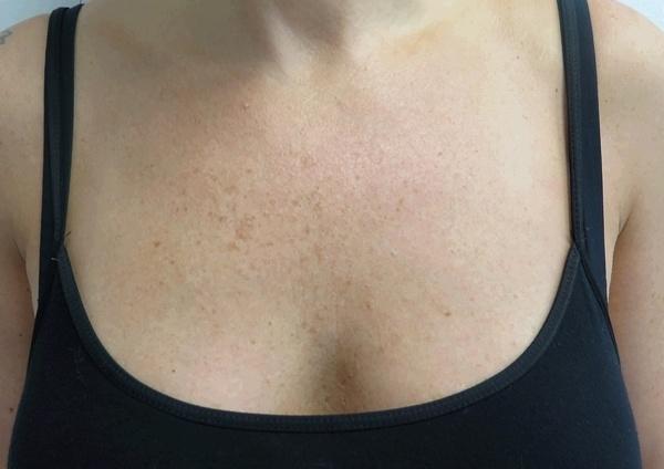 Odstranění pigmentací na dekoltu před zákrokem a po zákroku