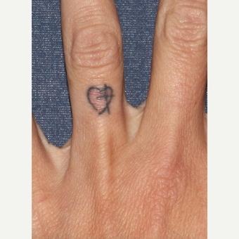 Odstranění tetování před a po zákroku