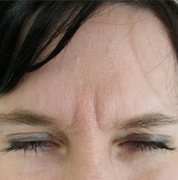 Odstranění vrásek botulotoxinem - před a po zákroku