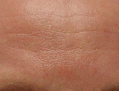 Odstranění vrásek botulotoxinem před a po zákroku