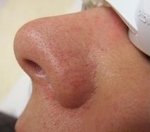 Odstranění žilek laserem před a po zákroku