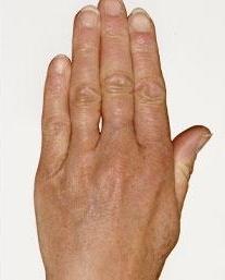 Omlazení hřbetů rukou - Vital injektor před a po zákroku