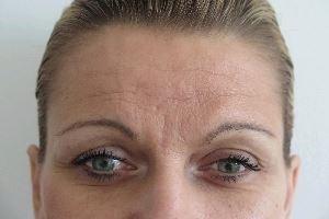 Omlazení pleti - čelo - odstranění vrásek botulotoxinem a kyselinou hyaluronovou - před a po zákroku