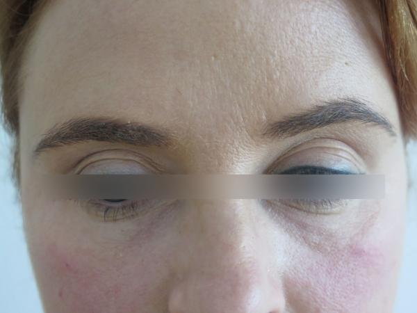 Omlazení pleti - kruhy pod očima - výplň kyselinou hyaluronovou - před a po zákroku