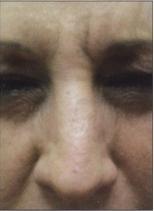 Omlazení pleti - nos - odstranění vrásek botulotoxinem - před a po zákroku