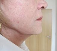 Omlazení pleti - Ultherapie - spodní část obličeje - před a po zákroku