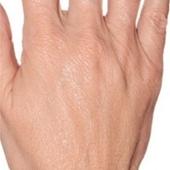 Ošetření hřbetů rukou Profhilem