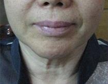 Ošetření obličeje ULTRAFORMER III před a po zákroku