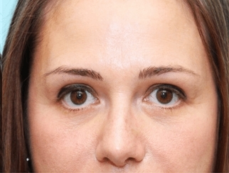 Ošetření váčků pod očima před a po zákroku