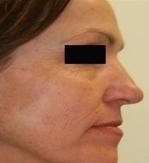 Plazmaterapie - plazmalifting obličeje před a po zákroku
