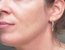 Povislé koutky – výplň kyselinou hyaluronovou před a po zákroku