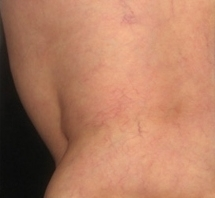 Sklerotizace křečových žil před a po zákroku