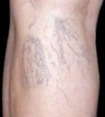 Sklerotizace křečových žil
